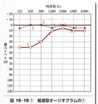 オージオ低音障害例.jpg